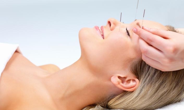 L'Agopuntura nel trattamento della Cefalea Primaria